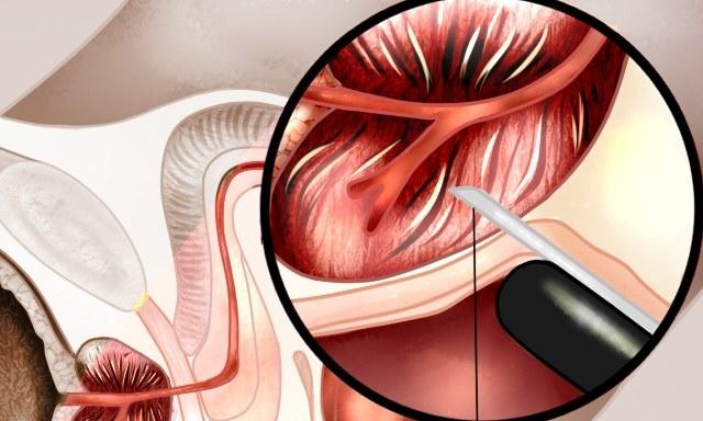 prosztata biopszia altatásban